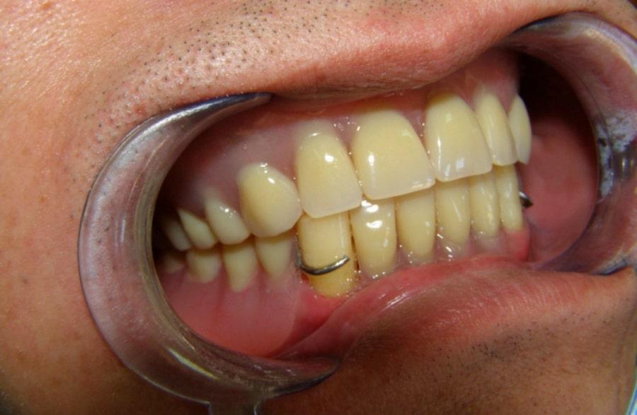 Фото съемного зубного протеза после установки