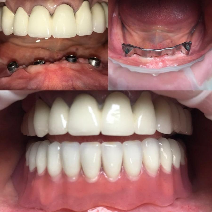 Фото результата установки импланта