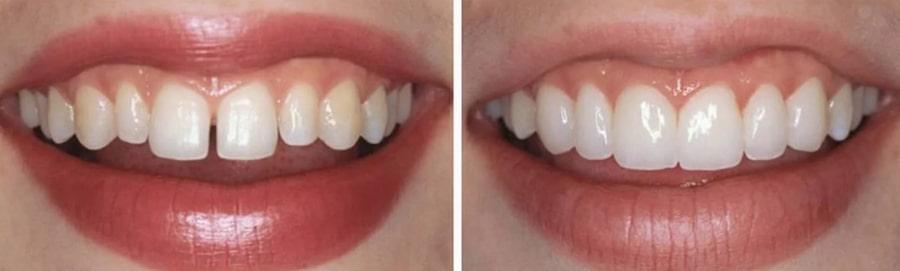 Зубы до и после установки виниров
