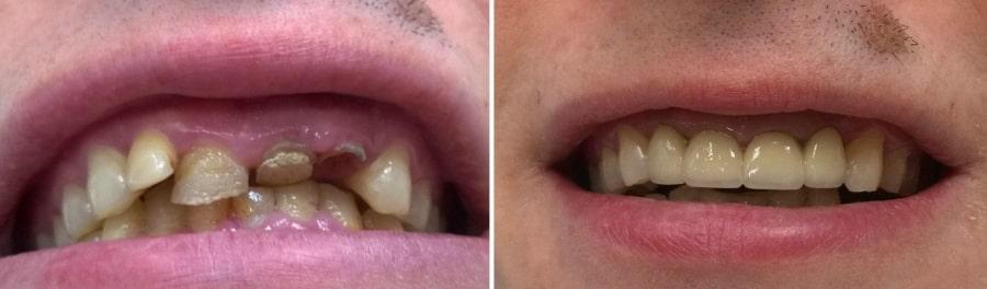Лечение зубов, фото до и после
