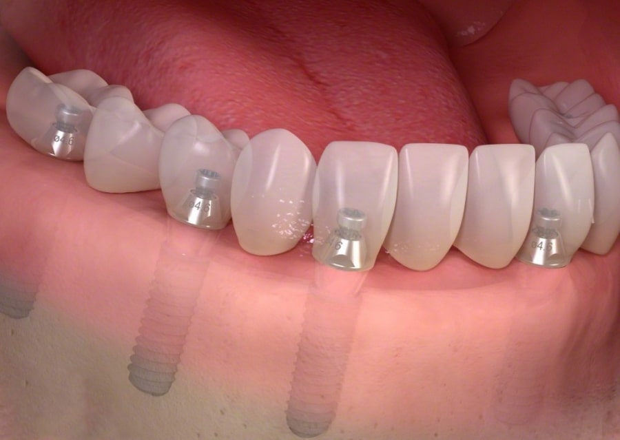 Зубы на имплантах