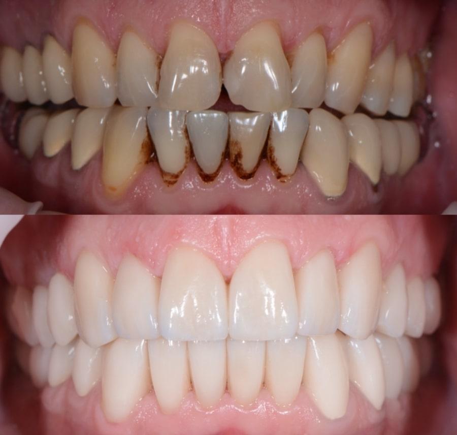 Зубы до и после лечения