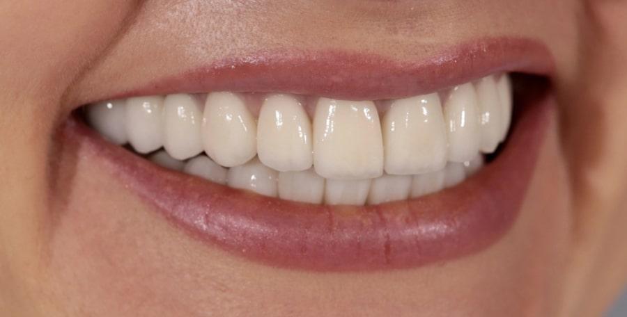 Результат виниринга зубов