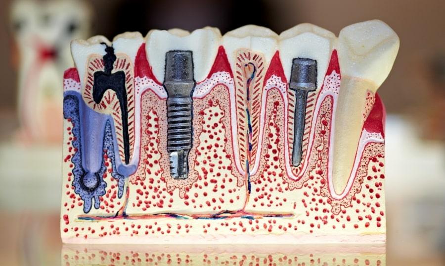 Макет с зубными имплантами