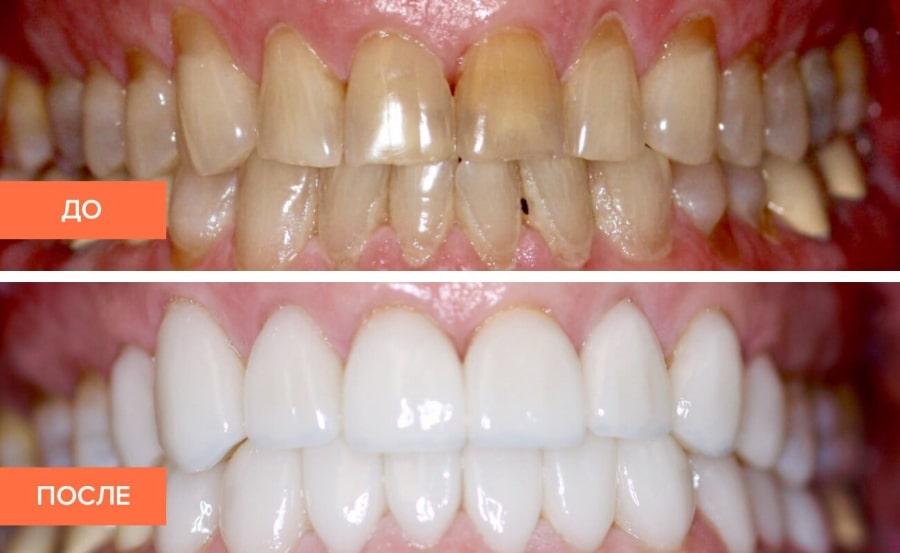 Результат лечения зубов наглядно