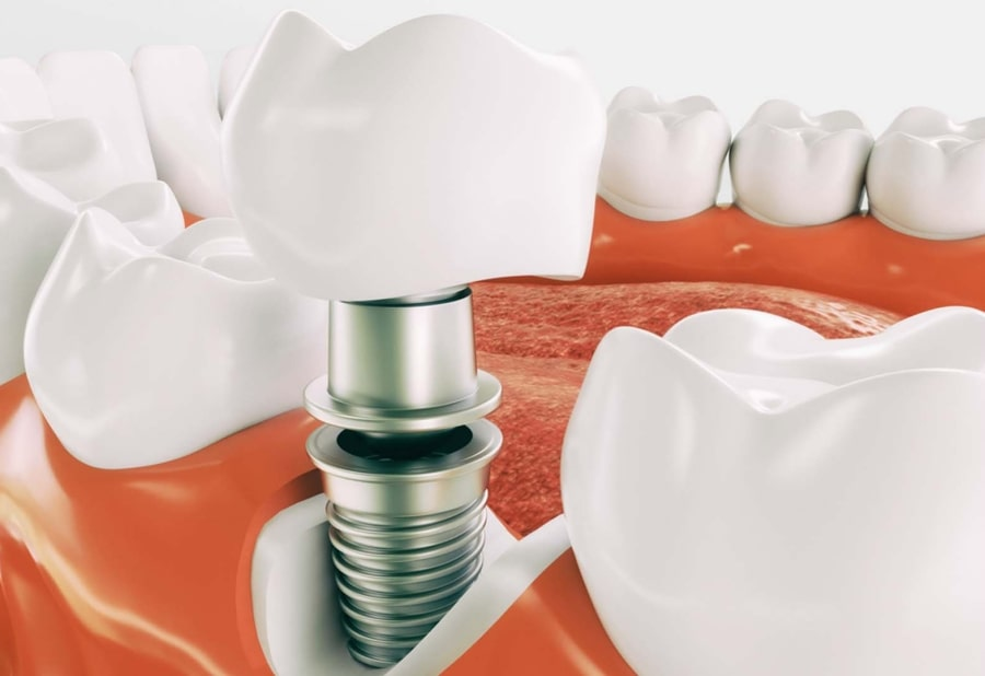 Установка импланта зуба наглядно
