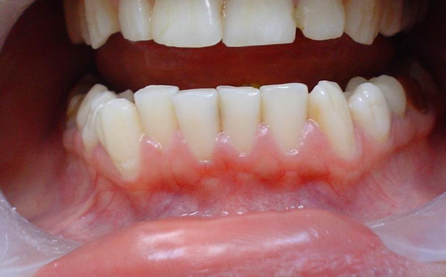 Воспаление десен на нижней челюсти