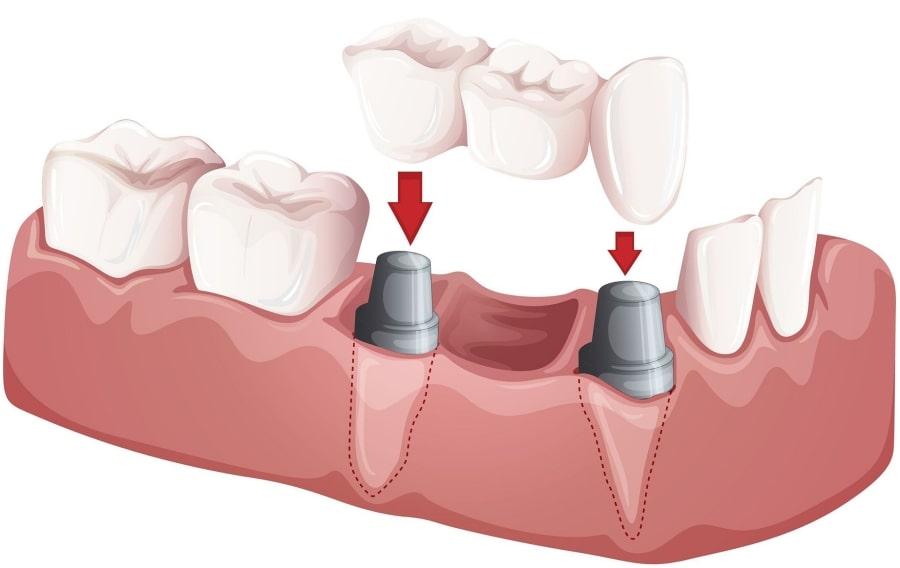 Принцип установки зубных имплантов