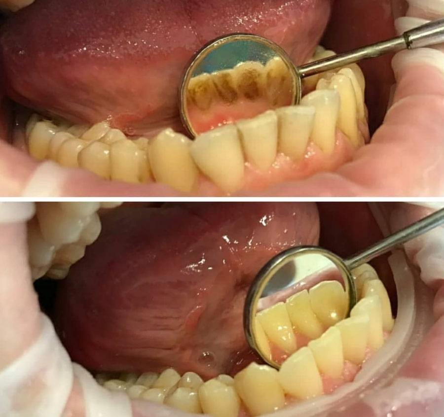 Эффект после профессиональной чистки зубов