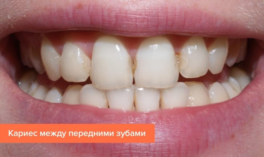 Кариес передних зубов, фото