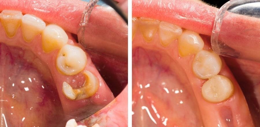 Лечение зубов с кариесом