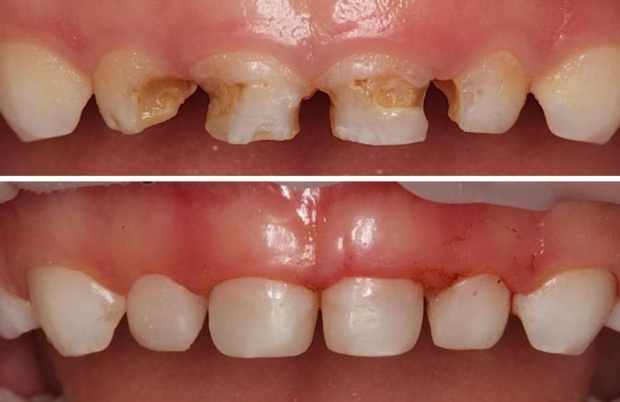 Кариес молочных зубов у детей и результат его лечения