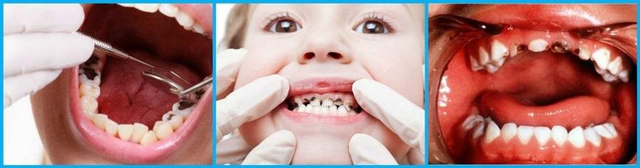 Наглядные фото детских зубов с кариесом