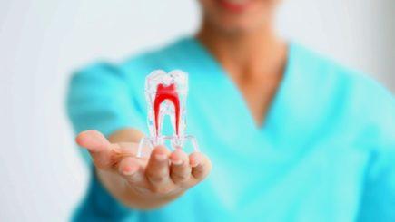 Макет зуба в руках стоматолога