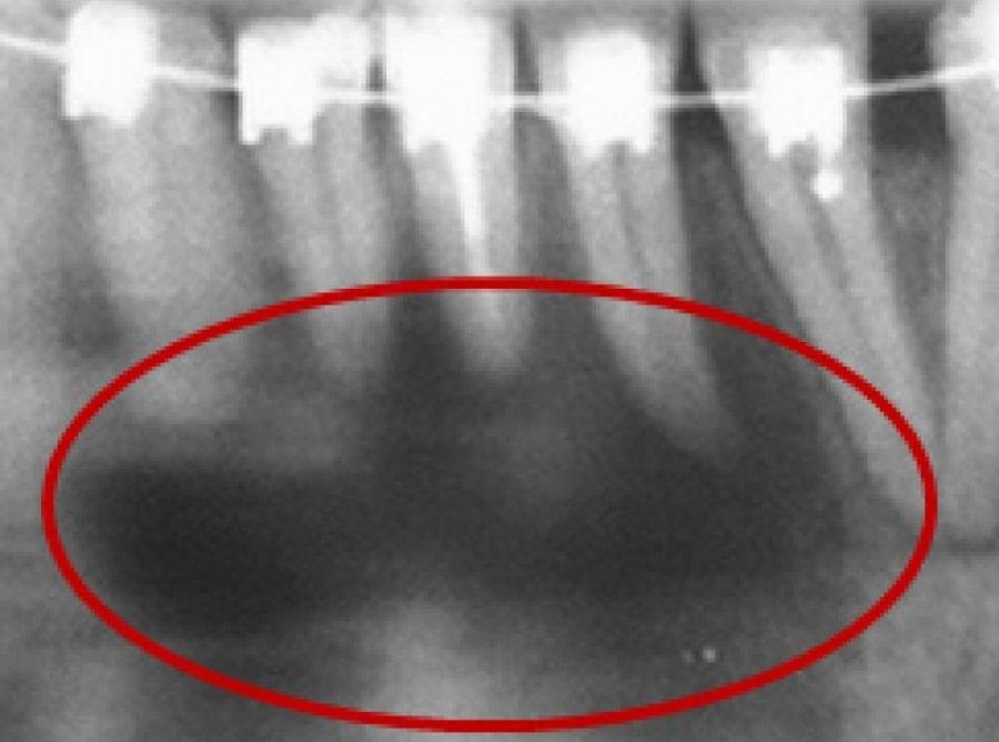 Радикулярная киста зубов нижней челюсти