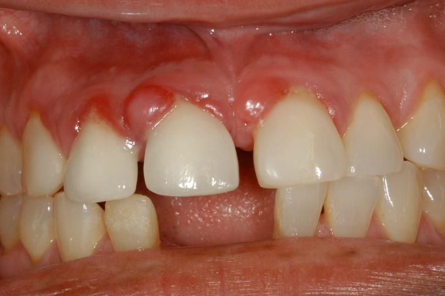 Зубные кисты