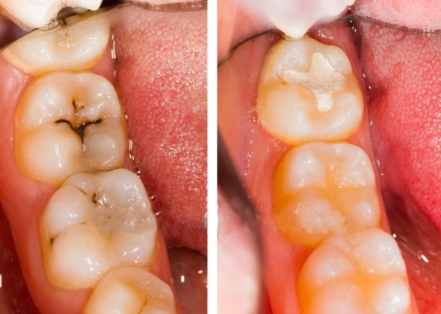 Зубы с кариесом до и после лечения