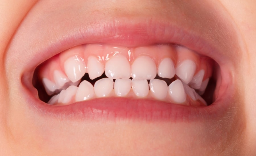 Здоровые зубы у ребенка