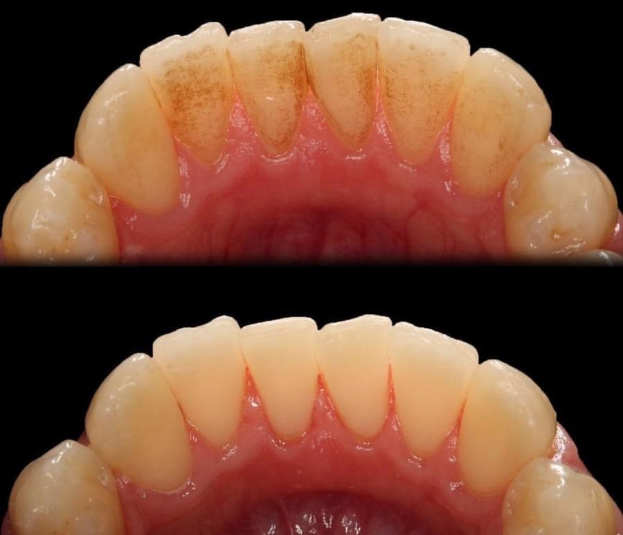 Фото зубов до и после чистки у стоматолога