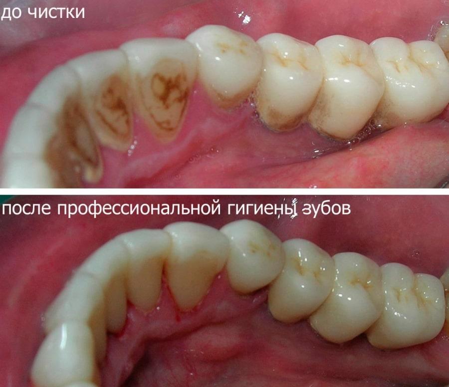 Зубы до и после гигиенической чистки