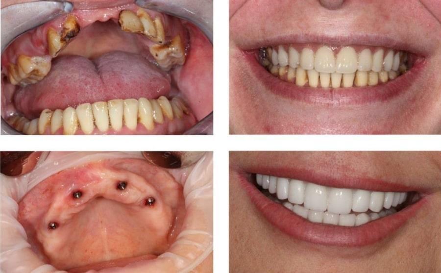 Результат профессиональной стоматологической помощи