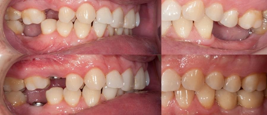 Восстановление зубов имплантами