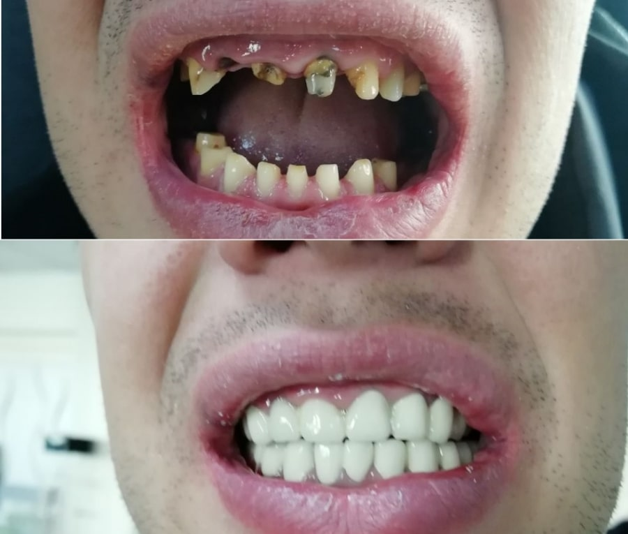 Новые зубы
