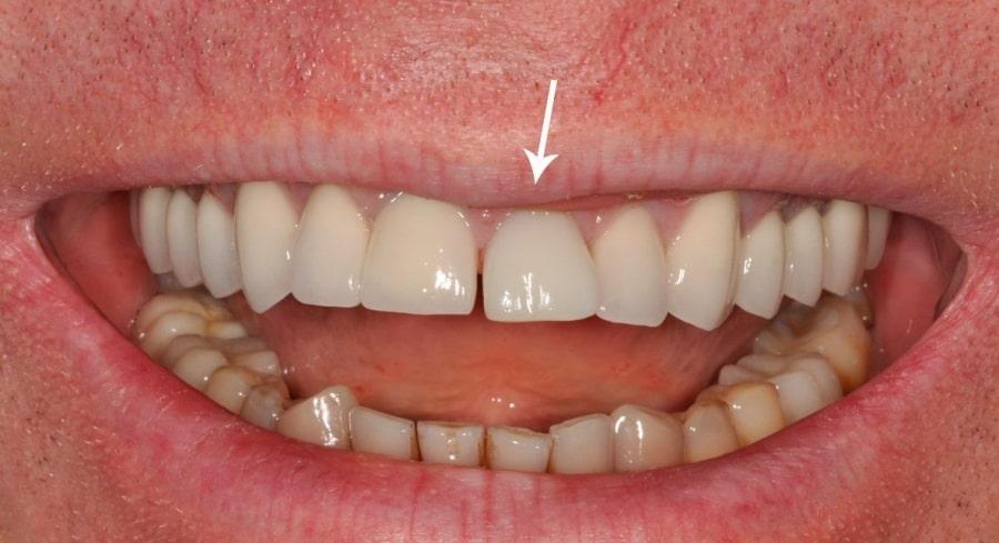 Искусственный зуб