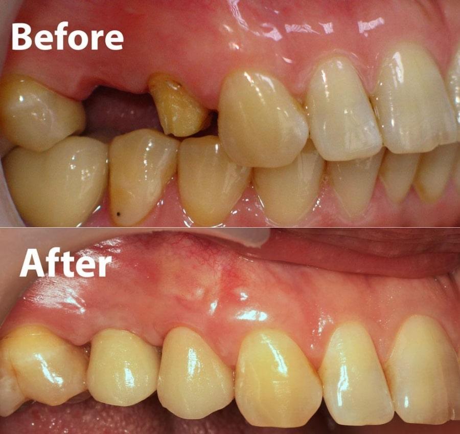 Зубной ряд до и после установки искусственного зуба