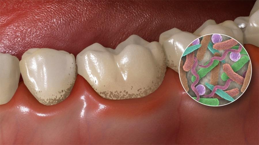 Понятие зубного камня