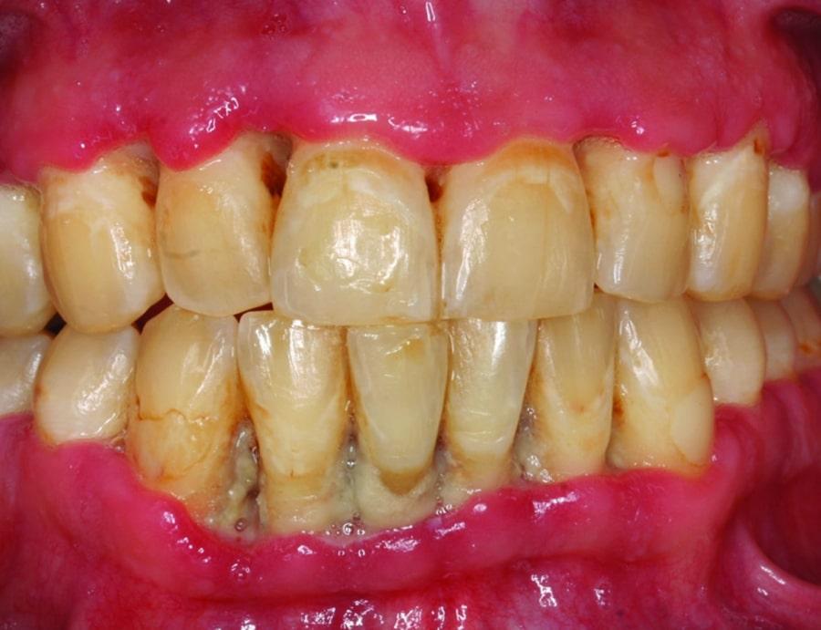 Последствия зубного камня