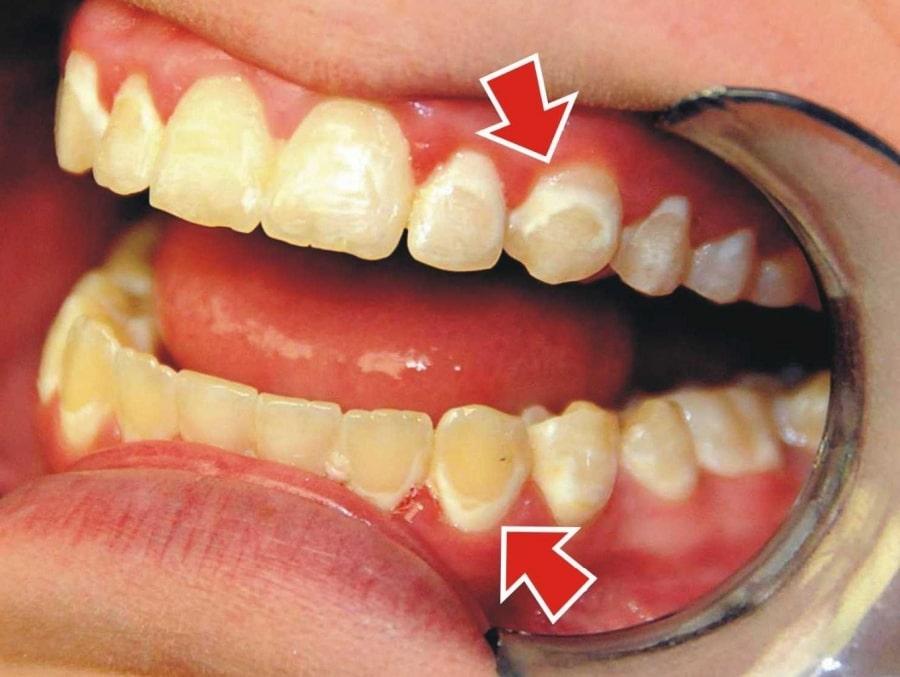 Так выгляжит формирующийся зубной камень