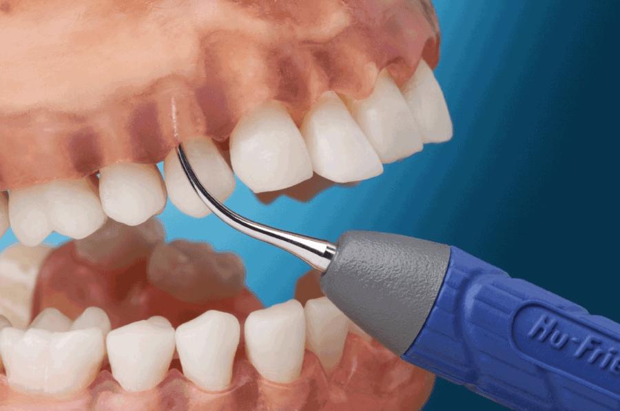 Ультразвук против зубного камня