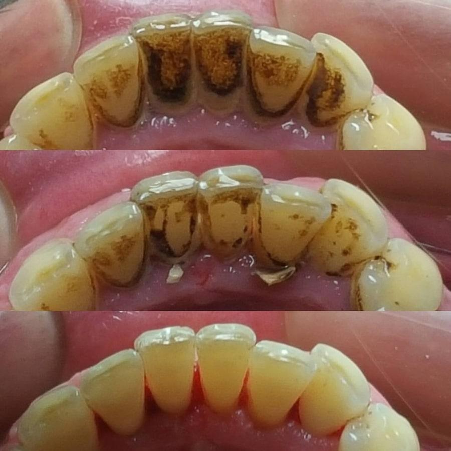 Эффект после удаления камня с зубов