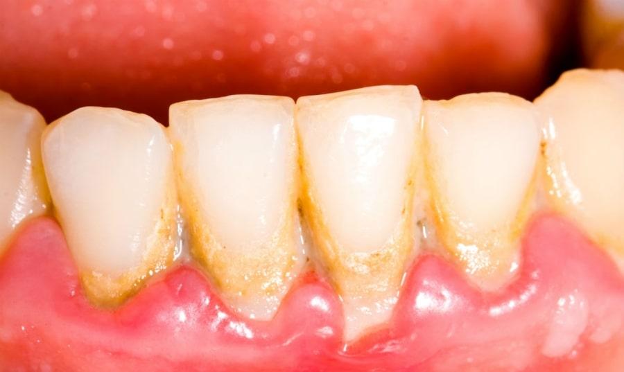 Зубной камень и гингивит