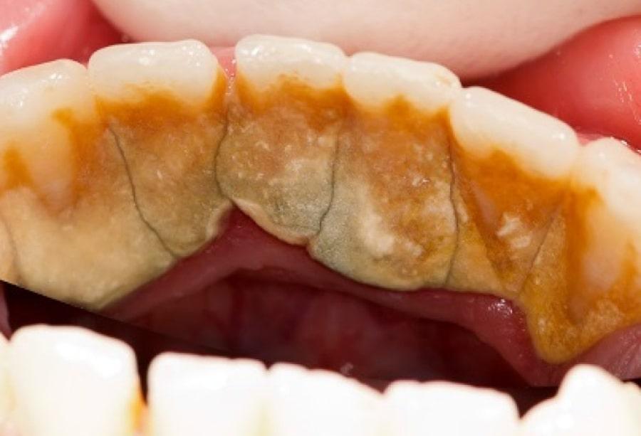 Запущенный случай - зубной камень